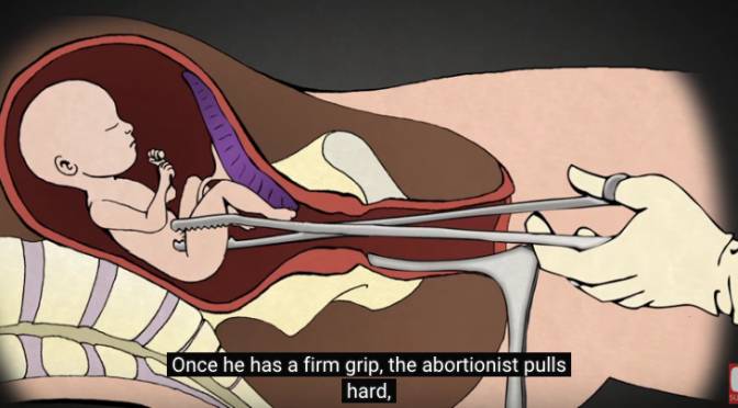 Mississippi Senate votes to ban dismemberment abortions