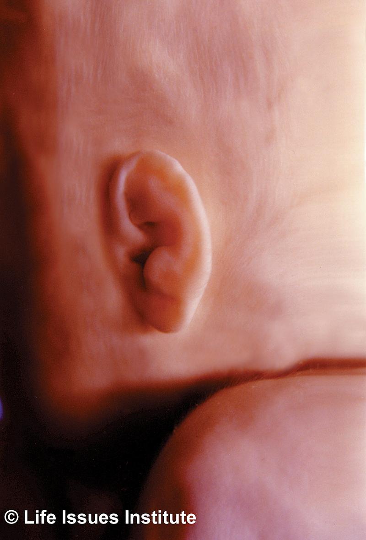 20-weeks-human-fetus2