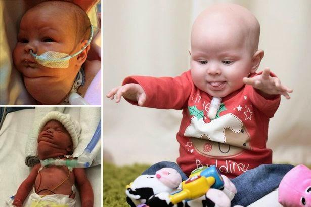 jenna-smith miracle baby