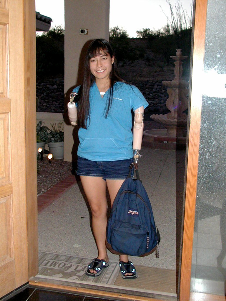 Prosthetics Age 14 JCMS
