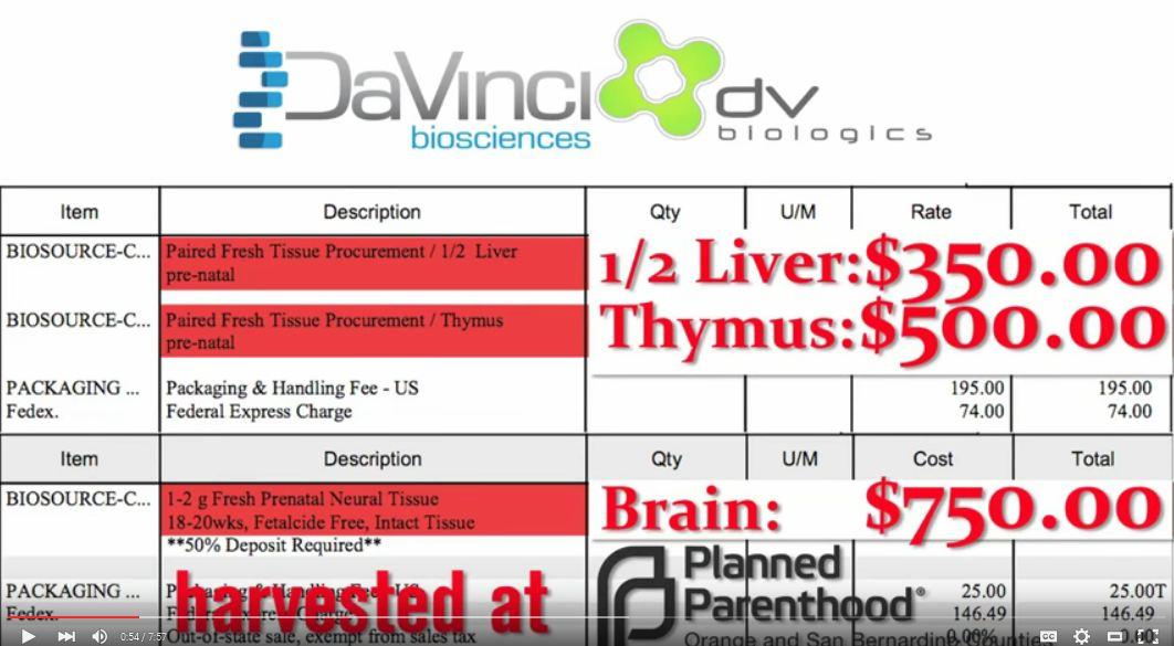 DaVinci Planned Parenthood sells baby parts