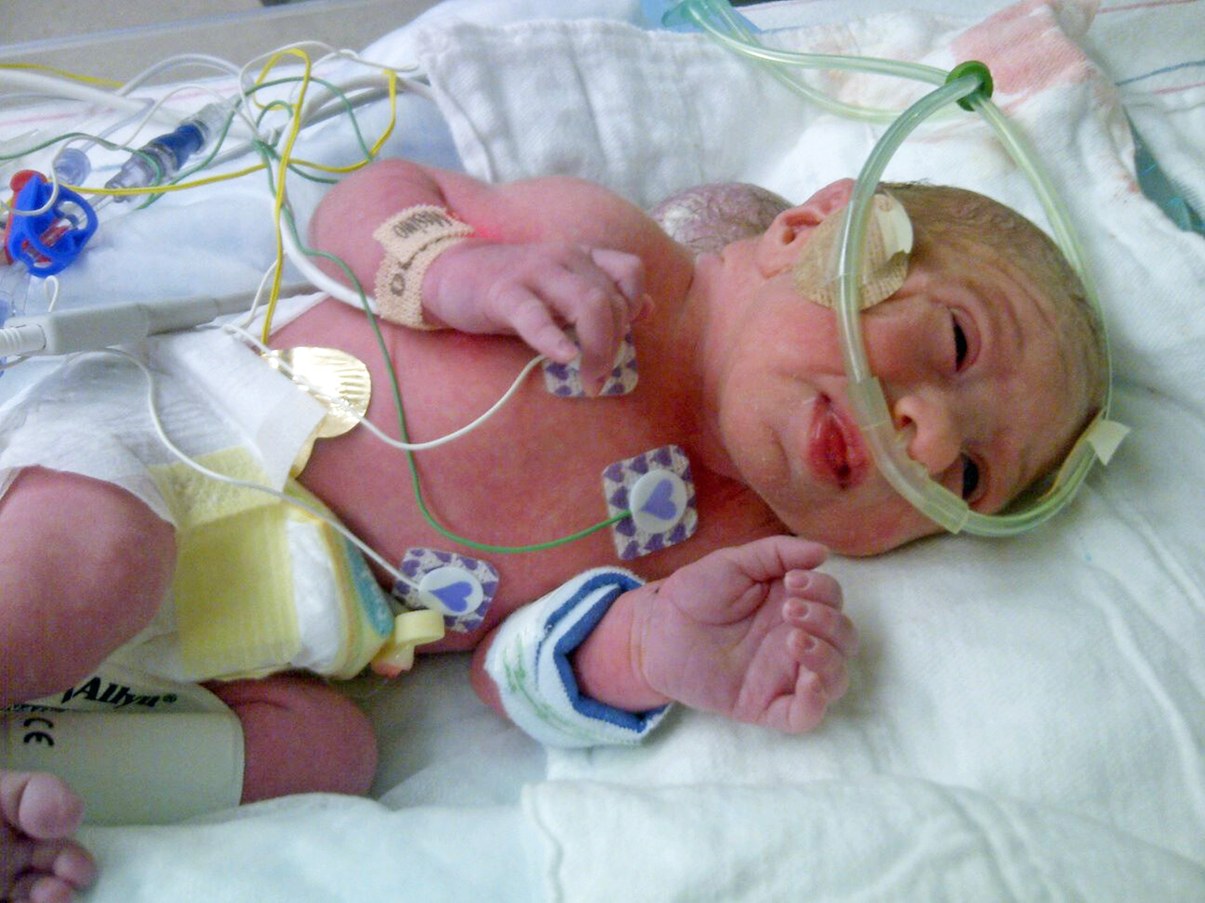 BRAIN TUMOUR BABY
