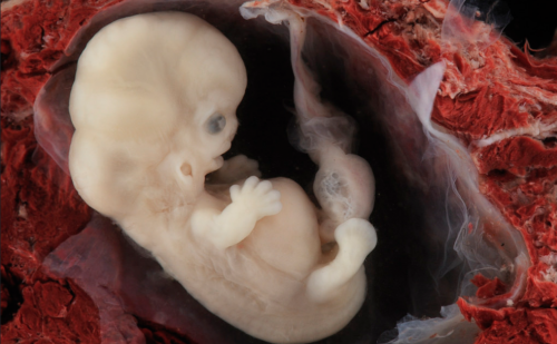 Guardian article claims a human embryo has no heart, but medical sources disagree