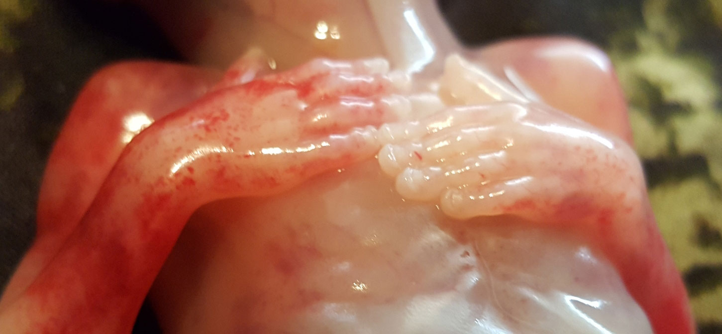 japeth-hands