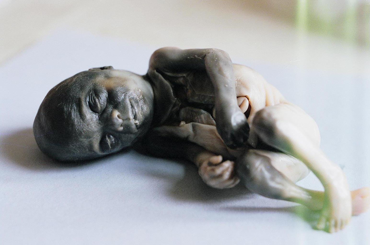 second trimester abortion victim 2
