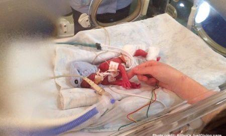 Arthur Brumby, 23 weeks, premature