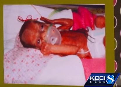 Baby Avery born 24 weeks