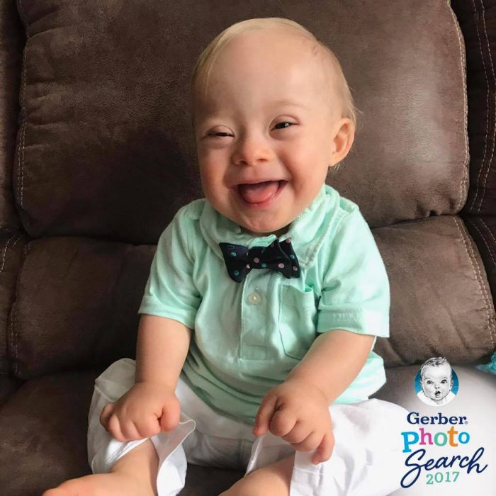 Image of Gerber baby who has Down Syndrome
