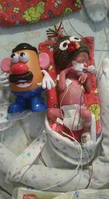 premature baby Winston Rochat