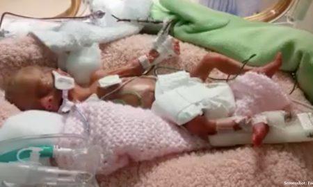 preemie, premature baby