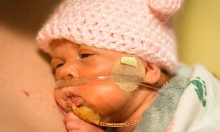 preemie, born alive