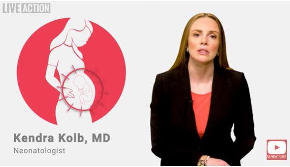 kolb prenatal diagnosis