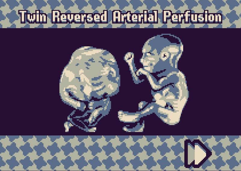 fantastic fetus 2