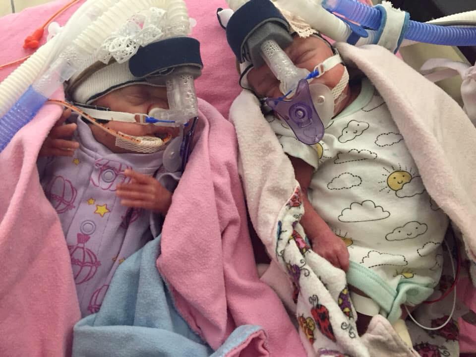 via Facebook, premature, twins, 22 weeks