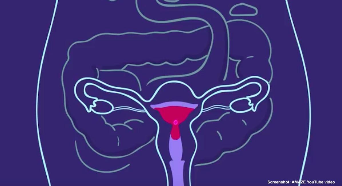 amaze screenshot abortion