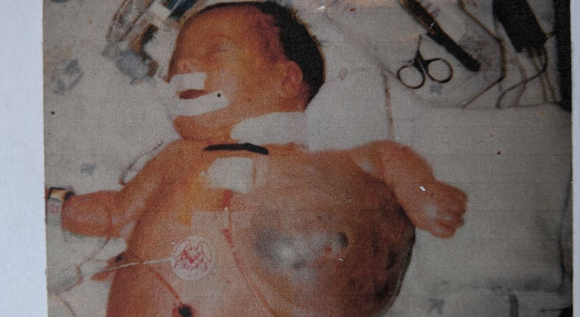 Abraham at birth cystic hygroma
