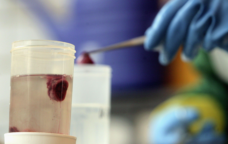 fetal tissue, university of new mexico