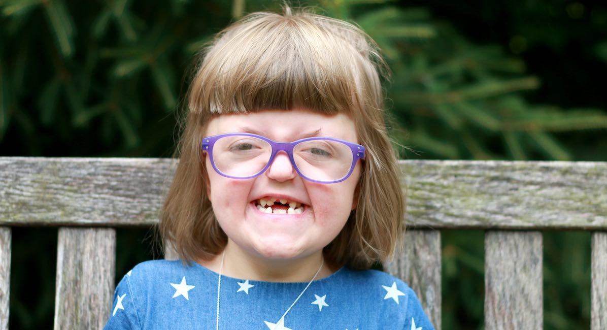 Sarah, craniofacial abnormalities, Apert syndrome